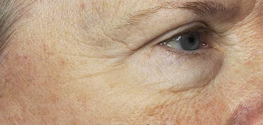 Patientin nach einer Faltenbehandlung mit re:pair Laser Technologie