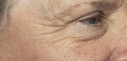 Patientin vor Faltenbehandlung mit re:pair Laser Technologie