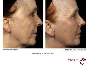 Gesichtstraffung mit re:pair Laser Technologie