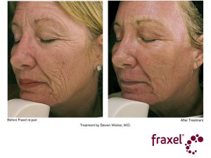 Gesichtsbehandlung mit Fraxel re:pair Laser