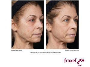 Augenbrauenkorrektur und Gesichtsverjüngung mit Laser re:pair Serie