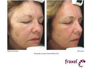 Entfernung von Pigmentenschtörung im Gesicht mit re:pair Laser