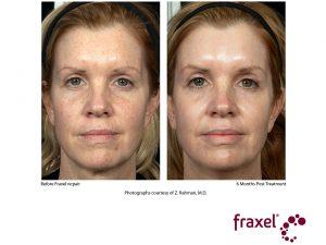 re:pair Entfernung von Altersflecken und Gesichtsverjüngung