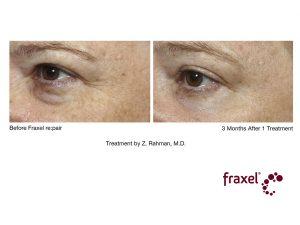 Behandlung von Augenfältchen (Krähenfüße / Lachfalten) mit re:pair Laser